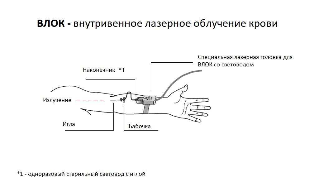 Аппаратные методики - ВЛОК