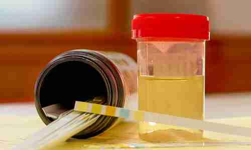 Как обмануть тест на наркотики?